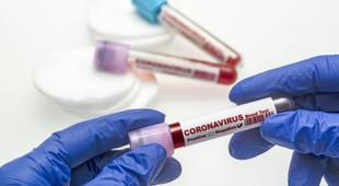Rusya koronavirüs aşısı için tarih verdi