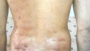 Vücudu %18 yakan epilasyona 1.500 TL ceza
