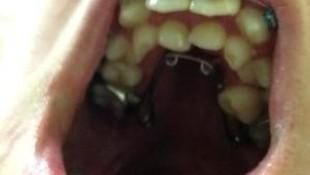 Ağzından 232 diş çıktı !