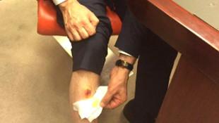 AK Partili vekil ısırıldı mı ? İşte Adli Tıp raporu