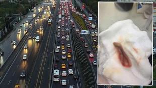 Trafikte akıl almaz kavga: Tartıştğı kişinin kulağını kopardı