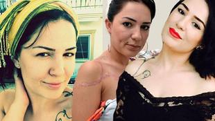 Dövme sildirme ameliyatı hayatını kararttı