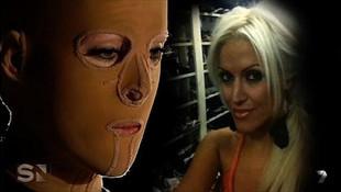 Kıskanç kocası yüzünden yüzünü kaybetti !