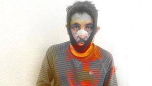 İzmir'de dehşet ! Şikayet edince öldüresiye dayak yedi