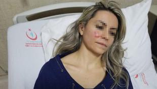 Kadın doktora saldıran yakalandı