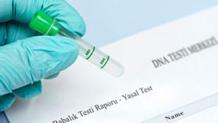DNA testlerine talep patladı !