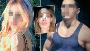 Sevgilisinin dövdüğü genç kız isyan etti: Ölmem mi gerekiyor
