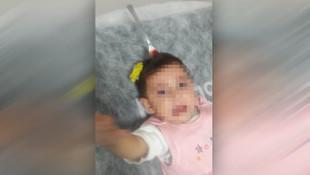 Bebeğin kafasına çatal saplandı