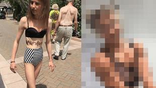 32 kiloya kadar düşen genç kızın son hali şoke etti