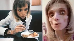 Anoreksiya hastası genç kadın 17 kiloya düştü