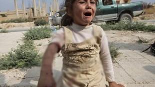 YPG/PKK'dan hain tuzak: 1'i çocuk 3 kişi yaralandı