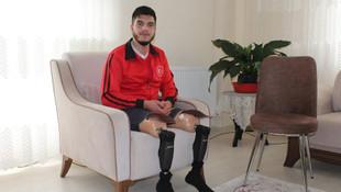 Gazilerimize protez bacak zulmü !