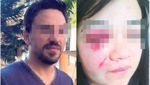 Uyuma Türkiyem! 32 yaşında bir çocuk annesi: ''Beni öldürmeden durdurun''