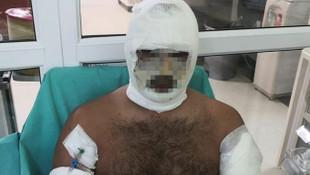 Terör saldırısı sandılar! İstanbul'da korkunç patlama