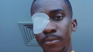 Henry Onyekuru'nun son hali sosyal medyayı salladı