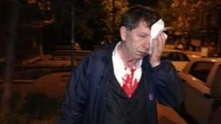 Gazeteci yazar Demirağ'a saldırı