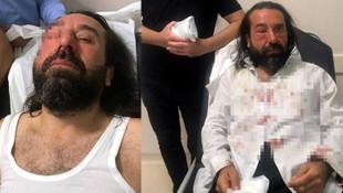 İYİ Parti'nin kurucusu Metin Bozkurt'a saldırı kamerada