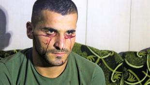 Kan ağlayan genç Türkiye'den yardım bekliyor