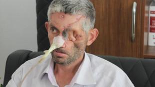 ''Diş çektirdi, yüzünü kaybetti'' iddiasına Valilik'ten açıklama geldi