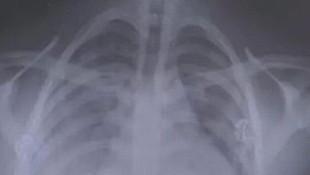 1,5 yıl elektronik sigara içen gencin akciğer filmi şoke etti