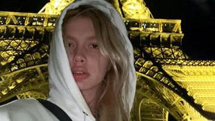 Aleyna Tilki dudaklarını şişirdi