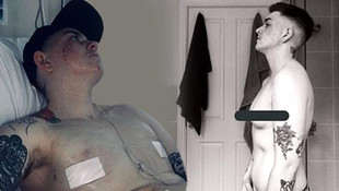 Cinsiyetini değiştirmek için göğüslerini aldıran genç kadın intihar etti
