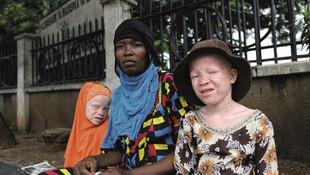 Afrikalı albinoların dramı sanatseverler ile buluşacak