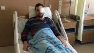 Saldırıya uğrayan avukat bir gözünü kaybetti