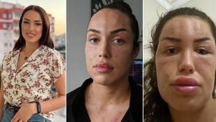 Gençlik aşısı yaptıran kadın tanınmaz hale geldi!