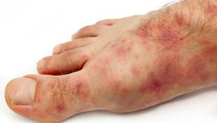 Ayaktaki lekeler koronavirüs belirtisi olabilir! Uzmanlardan ''test yaptırın'' çağrısı