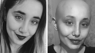 Kanser tedavisi gören Ayyüce'den üzen haber