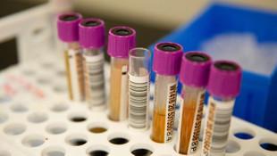 Yeni araştırmalar plazma tedavisinin etkisinin az olduğunu ortaya koydu