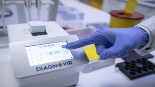 Türk bilim insanları geliştirdi: 10 saniyede koronavirüs testi!