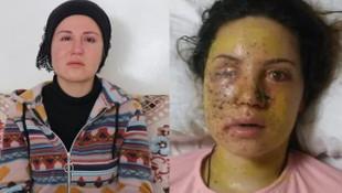 Bir kadına şiddet olayı daha! Genç kadın gözünü kaybetti