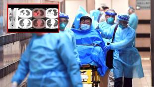 Çinli adamın röntgen fotoğrafları ortaya çıktı