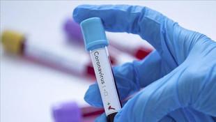 Koronavirüs insandan insana temasla nasıl yayılıyor?