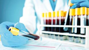 Koronavirüs test kitleri kapış kapış satılıyor