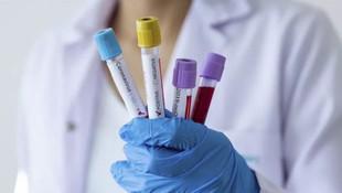 İngiltere'de 13 yaşındaki çocuk koronavirüsten hayatını kaybetti