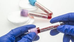 Türk bilim insanları koronavirüsün parmak izini ortaya çıkardı