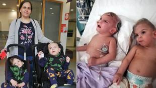 Kafaları yapışık Siyam ikizlerini 6 ayda ayıran doktor tedavi sürecini anlattı