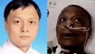 Koronavirüs nedeniyle ten rengi değişen doktor hayatını kaybetti