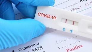 Yurtdışına çıkana ücretli koronavirüs testi!