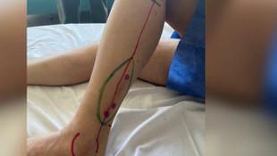 Kanser nedeniyle çene kemiği alınan hastaya bacak kemiğinden çene yapıldı