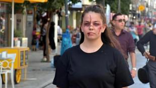 17 yaşında kadına şiddete karşı öyle bir şey yaptı ki...