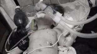 İstanbul'da kahreden haber! 1 yaşında, işkenceden öldü!