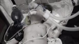 1 yaşındaki çocuğa öldüren işkenceye tutuklama