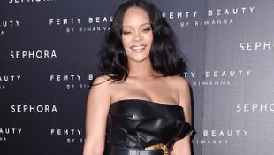 Rihanna, yüzündeki morluklar ile hayranlarını korkuttu