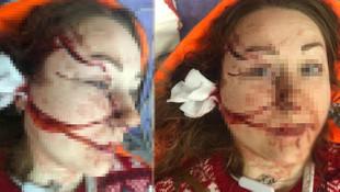 Genç kadını falçatayla doğrayan kocası tutuklandı