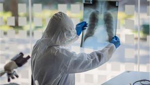 Bilim insanı uyardı: Koronavirüse yakalanma riskini yüzde 250 artırıyor