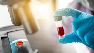 Dünyada bir ilk! Yaşlanmayı geciktiren gen tedavisi geliştirildi